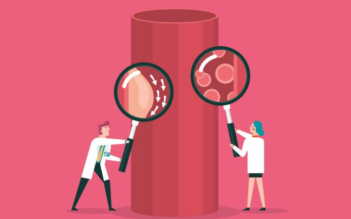 Choroba wieńcowa - czyli jak ją rozpoznać i jak ją leczyć?